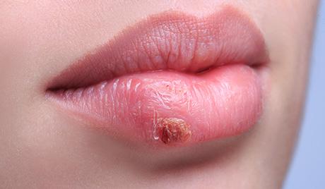 герпес после татуажа губ